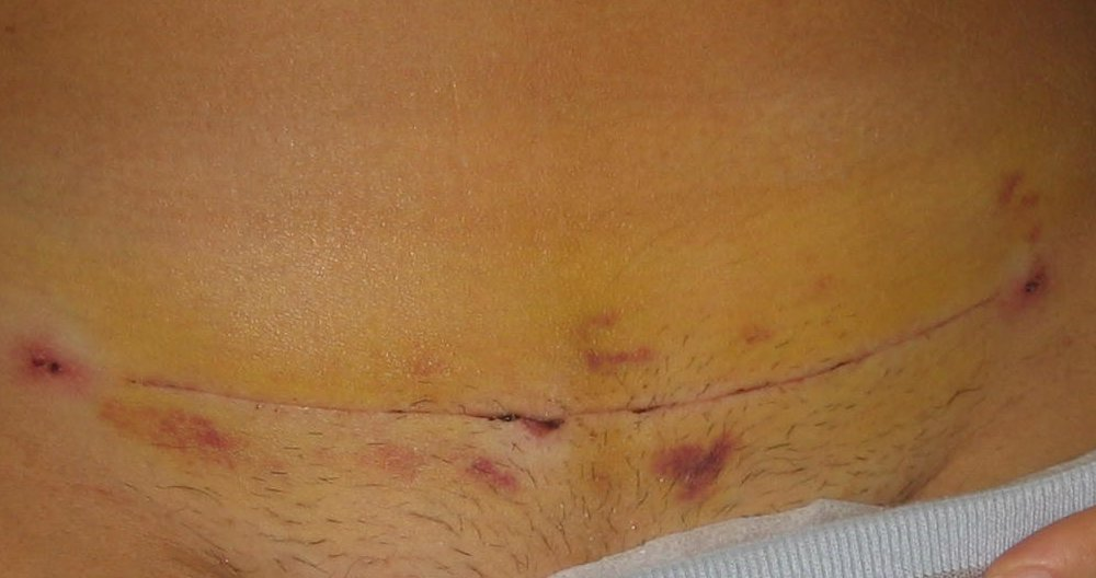 Caesarean Scar Pictures